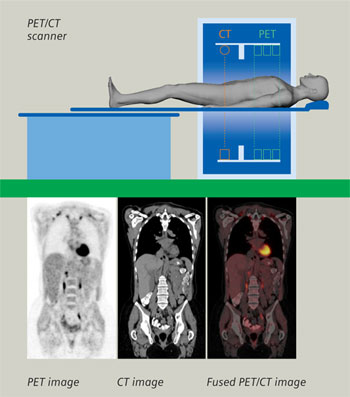 PET-CT images